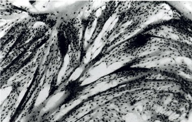 רקמות בשר תרנגול הודו שגודלו בתרבית, בהגדלה (אוניברסיטת מרילנד, 2005)
